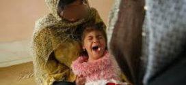 المجلس الطبي السوداني .. قرار بشطب أي طبيب يمارس ختان الإناث