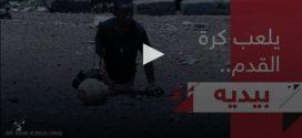طفل يتحدى الإعاقة ليصبح نجم كرة قدم